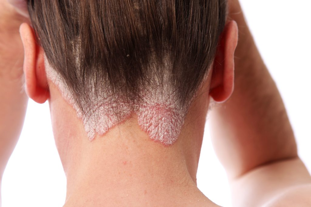 Scalp Psoriasis and Hair Transplantation