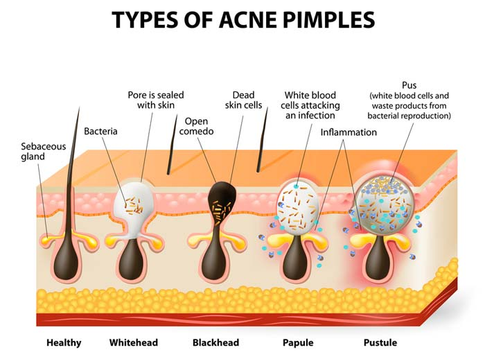 types-of-pimples