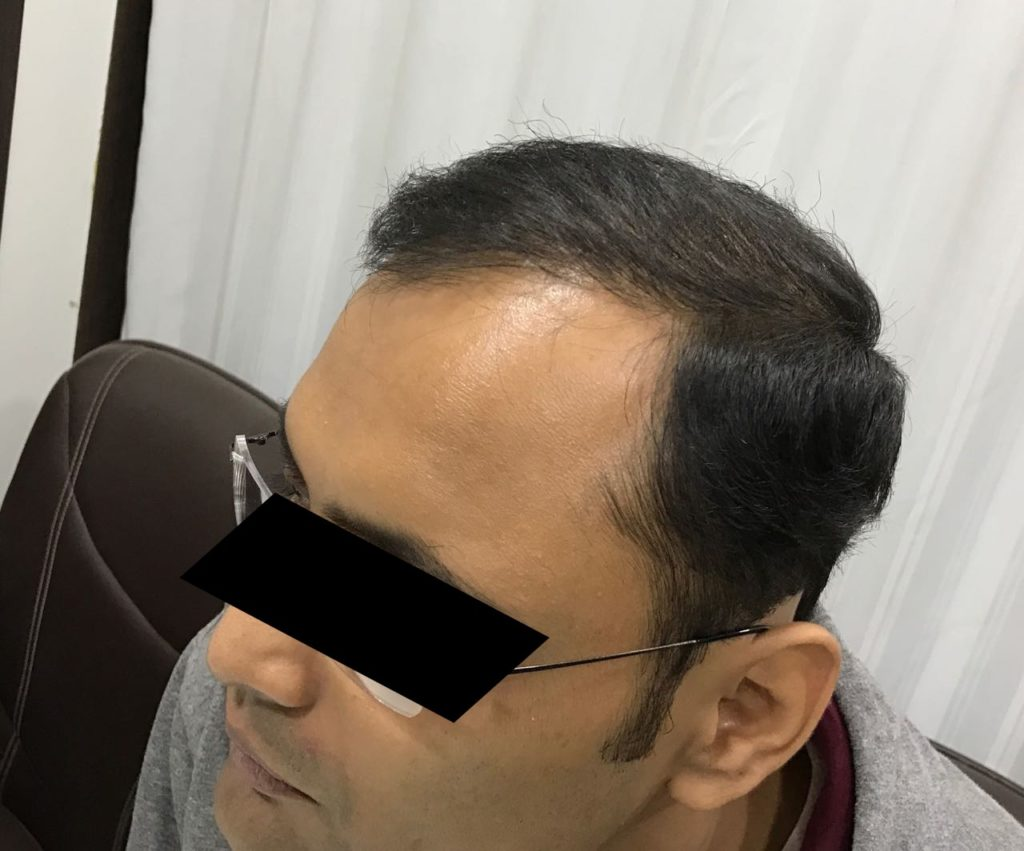 six month hair transplant results