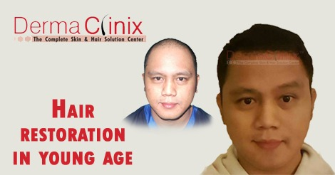 hair restoration in young age