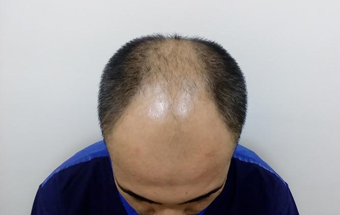 pre OT hair transplant in new-delhi