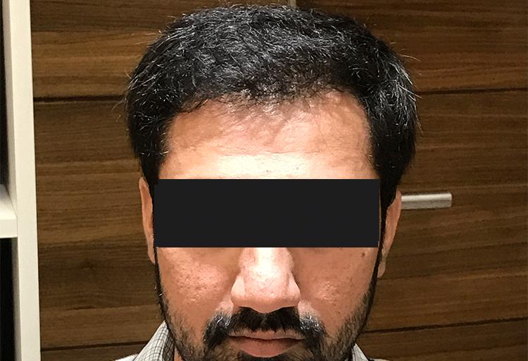 Hair transplant result_DermaClinix