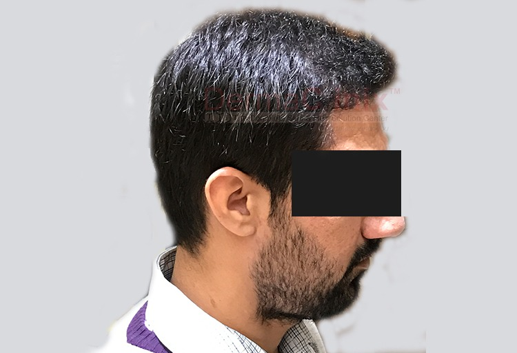 post surgery hair transplant result