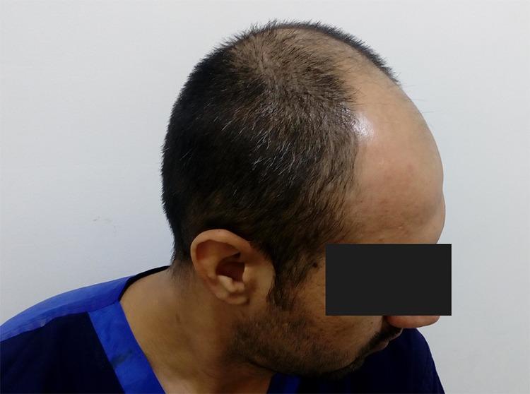 pre ot hair transplant