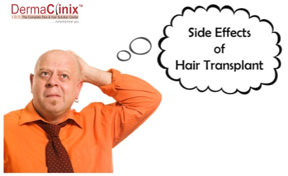 side effects of hair transplant
