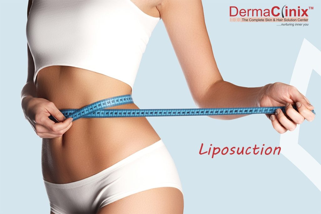liposuction at dermaclinix south delhi