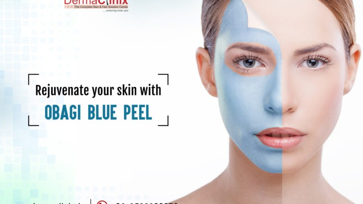 Obagi blue peel in Delhi