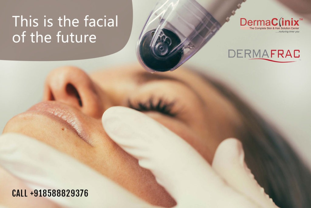 dermafrac at dermaclinix Delhi