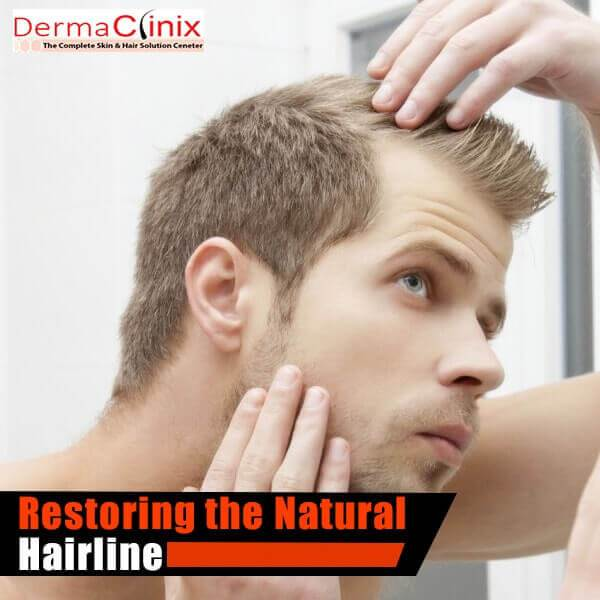natural hair line transplantation center delhi