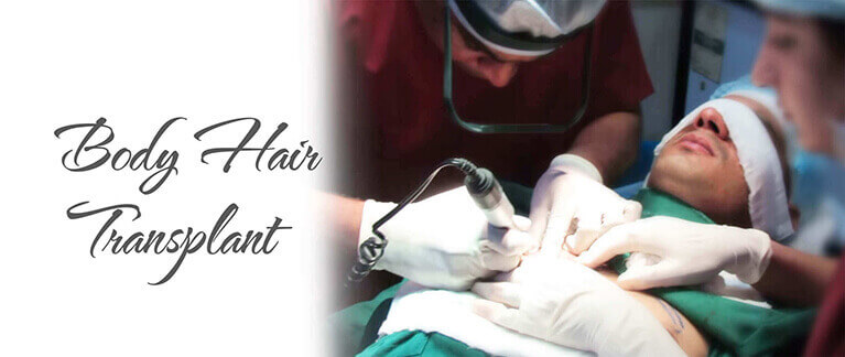 body hair transplant in delhi India