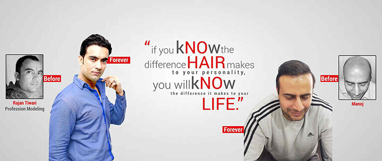 Hair Transplant Center Delhi