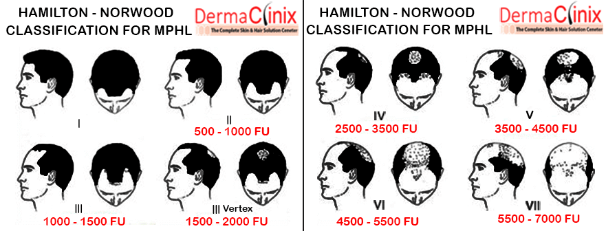 Best Hair Transplant Delhi hamilton-norwood