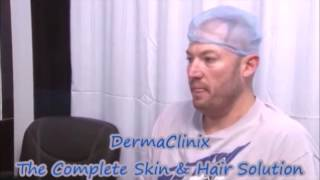 video testimonial of hair transplantation