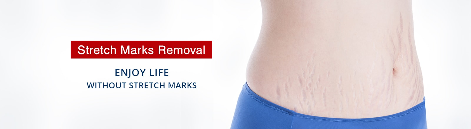 stretch marks treatment in South Delhi