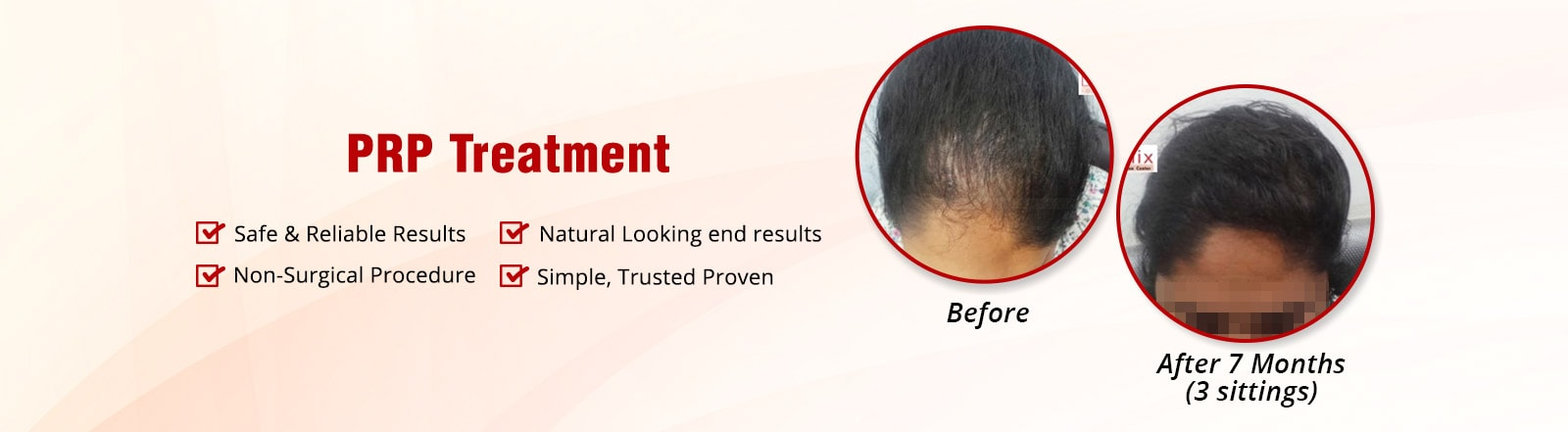 prp treatment in Delhi