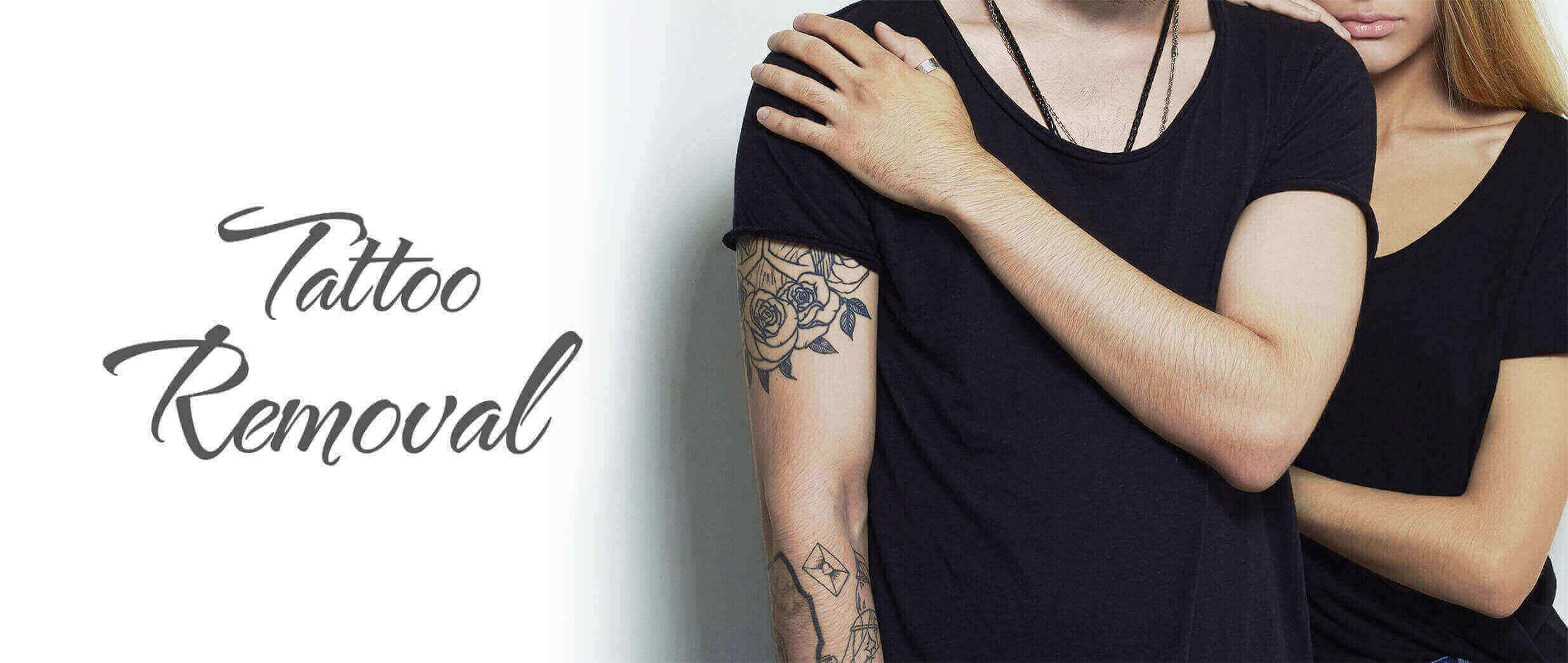 Permanent Laser Tattoo Removal in South Delhi