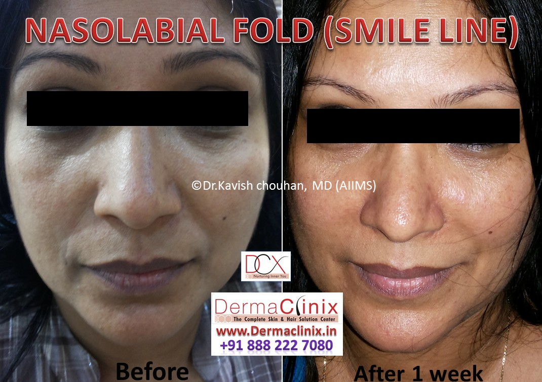 Botox And Dermal Fillers Before After Photos Results Image
