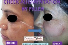 CHEEK AUGMENTATION before after image