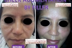 CHEEK AUGMENTATION before after photo by fillers