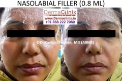 Fillers treatment results at DermaClinix