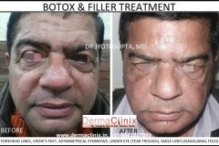botox before after photo