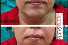 marionette lines before after photo of dermal fillers