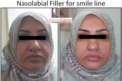 smile line before after images by fillers