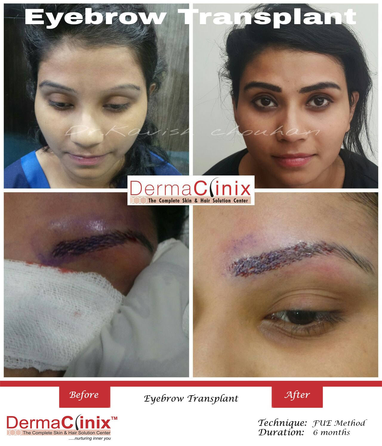 Eyebrow Eyelashes Transplant Before After Results in Delhi ...