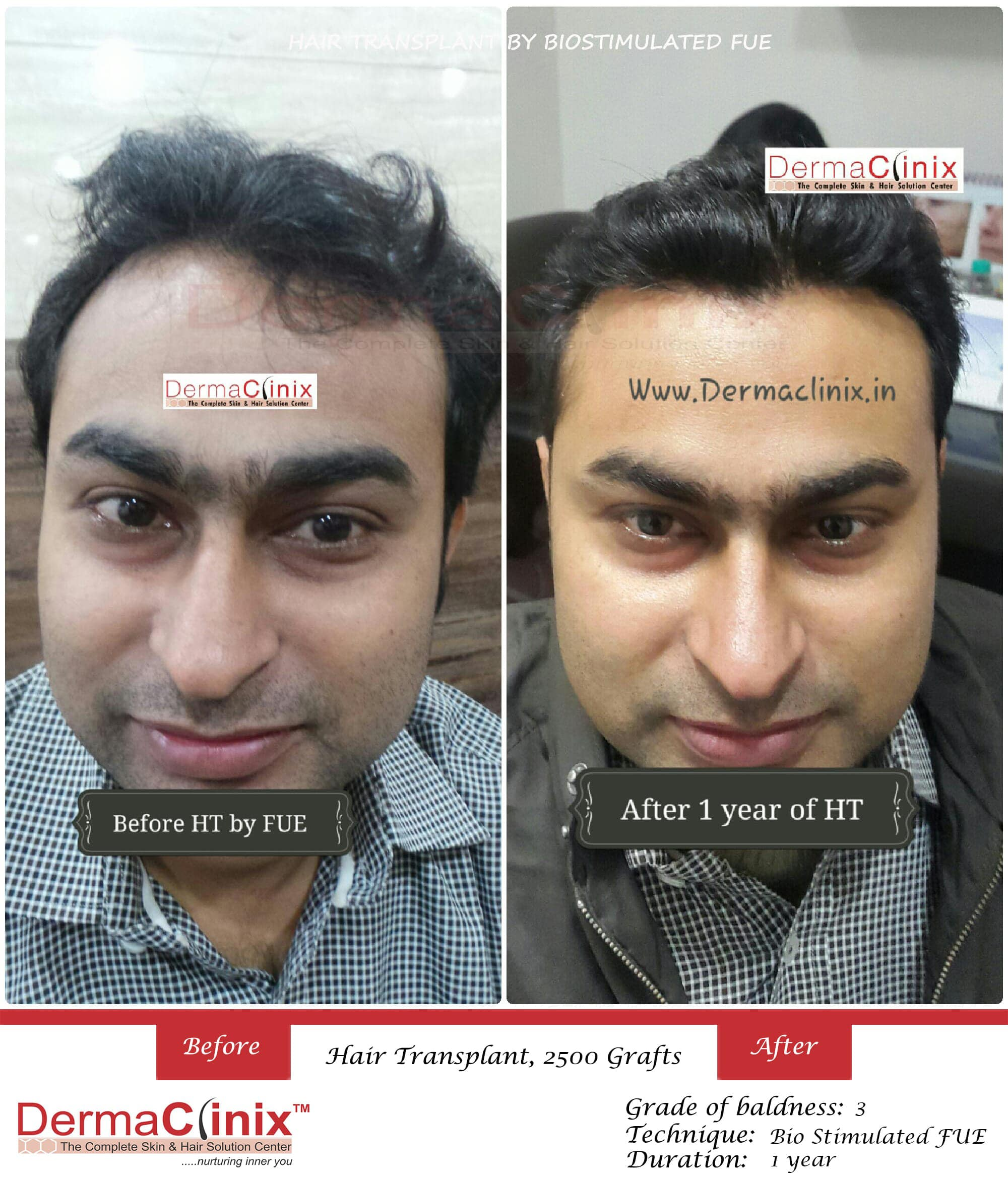 Hair Transplant Surgery & PRP Results,Before and After Photos