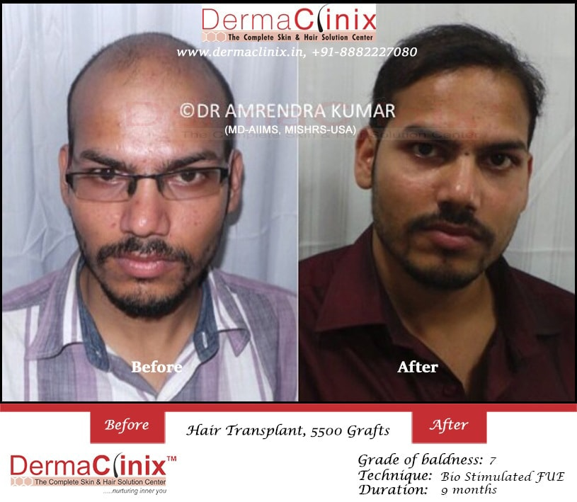Hair Transplant Surgery Prp Results Before And After Photos India
