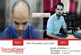 hair-transplant-results-in-south-delhi