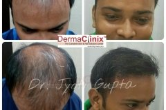 best-fue-hair-transplant-results
