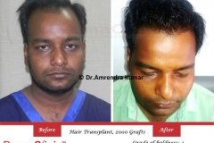 hair-transplant-before-after-40