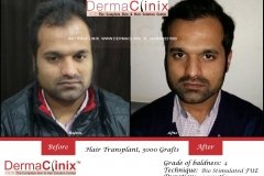 hair-transplant-before-after-45