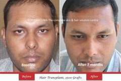 hair-transplant-before-after-46