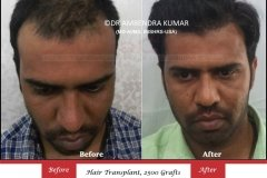 hair-transplant-before-after-47