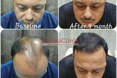 hair-transplant-before-after-image