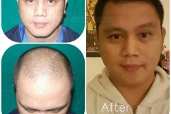 hair-transplant-result-young-age-34