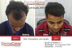 hair-transplant-results-36