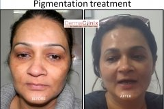 skin pigmentation treatment before after results