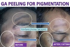 skin pigmentation before after results